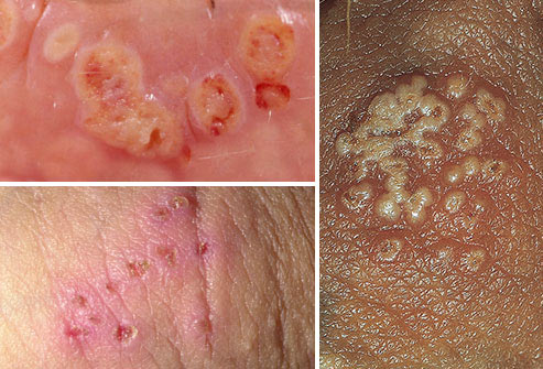 Photos of herpes blisters