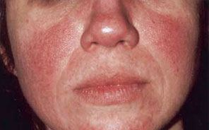 Photo of typical rosacea on face