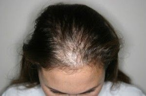 womens hair loss