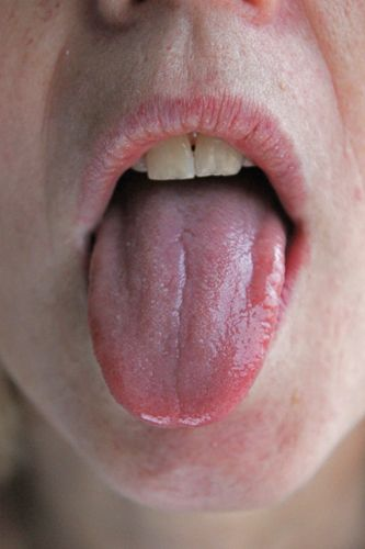 Zithromax chlamydia symptoms in mouth