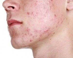 acne antibiotics online uk