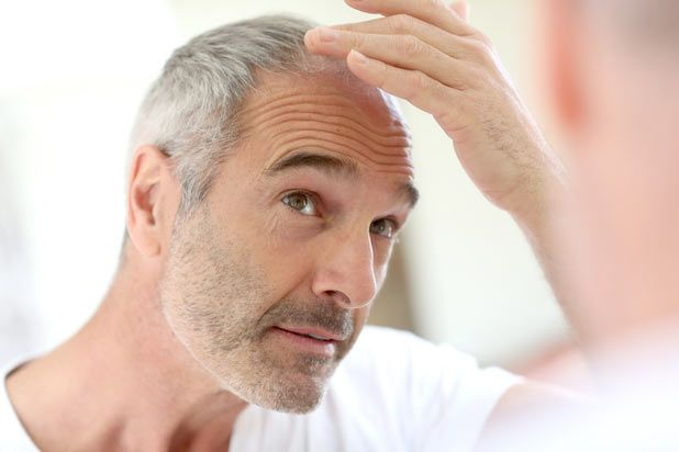 generic finasteride man hair loss